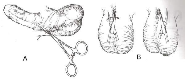 Vasectomía sin bisturí