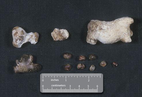 Tamaño de las piedras en el riñón