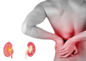 Al orgasmo del dolor en los riñones
