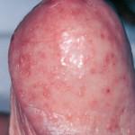 imagen de puntos rojos en el pene