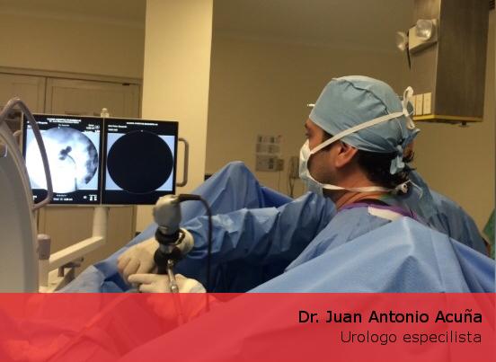 Urólogo en Monterrey - Dr. Juan Antonio Acuña